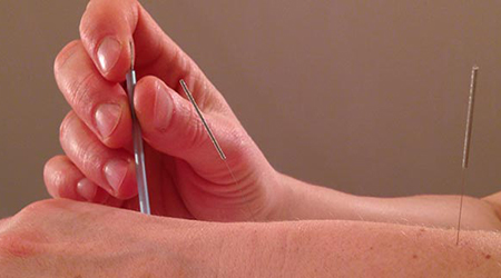 acupuncture needle slide